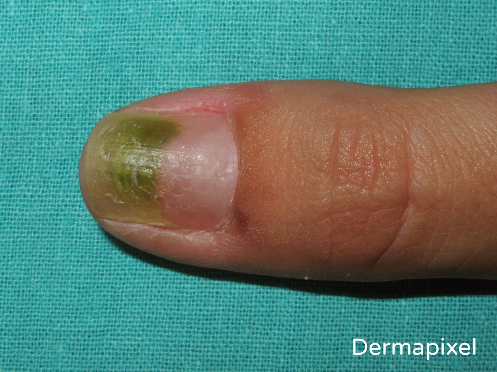 Dermapixel: Uñas verdes: a veces son Pseudomonas (y otras, no)