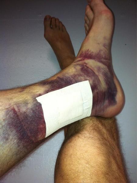 Chipper Jones Tweeted A Beautifully Bruised Ankle Bob S