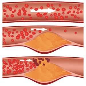 Cholesterol - A Risk Factor in Heart Disease