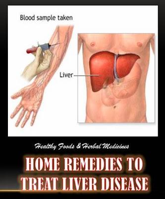 removing gallbladder for pancreatitis