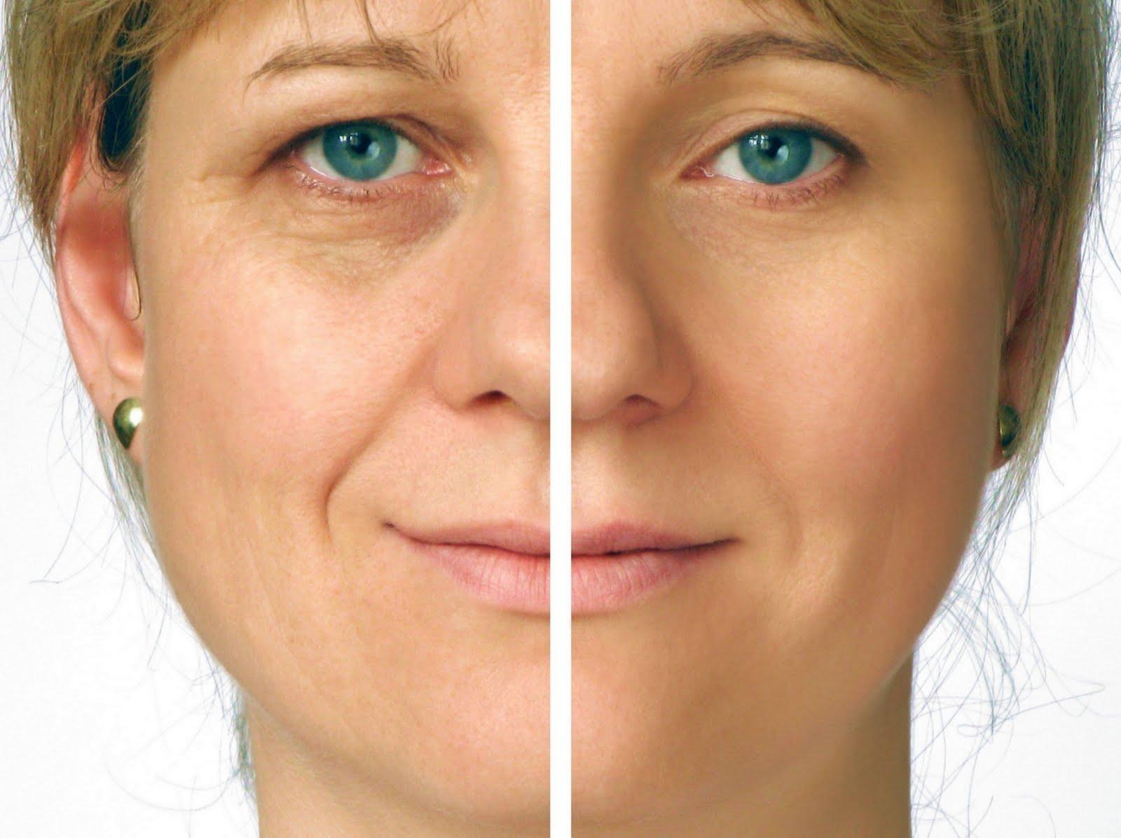 Best Anti-Aging Face Cream
