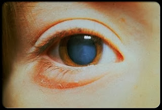 Cataract Symptoms, Types, Treatment And Other