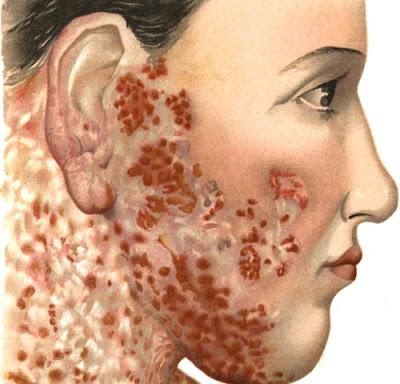 Cara Mengobati Lupus