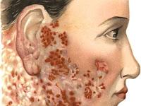 Penyebab, Gejala  dan Cara Mengobati Lupus