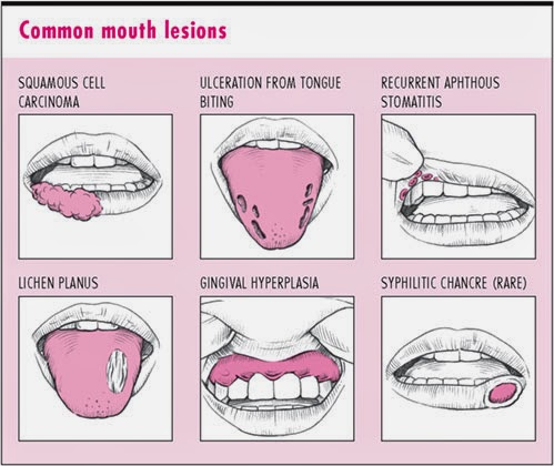 Mouth ulcer - Wikipedia
