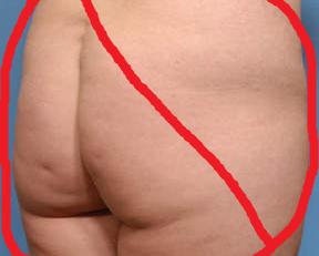 Flat big ass