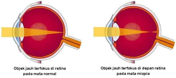 Mata normal dan mata miopia