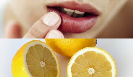 Bibir Anda Kering? Basahi Dengan Lemon Setiap Malam