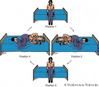 Brandt Daroff Medical treatment and therapy of Benign Paroxysmal Positional Vertigo