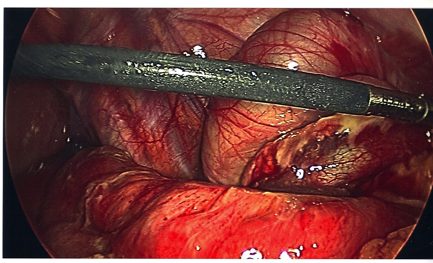 the first appendectomy What to expect after recovery from an appendectomy appendectomy is the term that is used in the medical field to refer to a surgical operation used to remove the appendix the appendix is a small tube-shaped pouch that is attached to the large intestines.