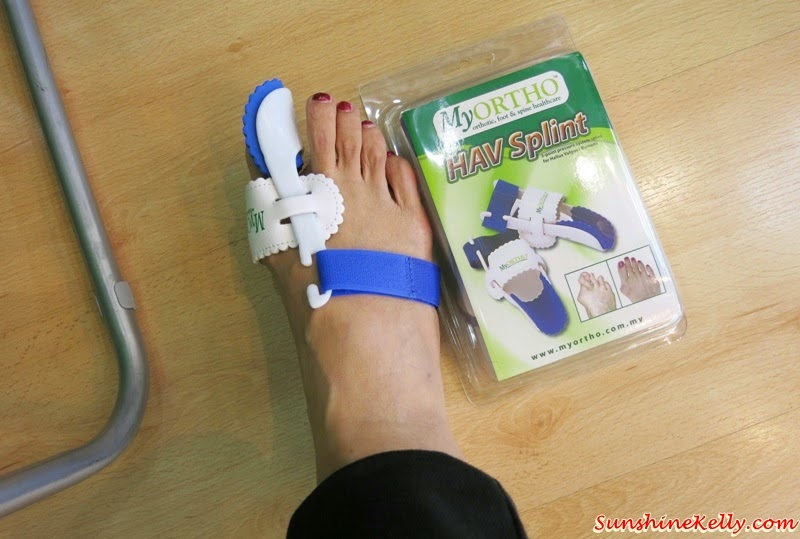 Foot Care, The Correct Ways to Keep Our Feet in Good Shape, Dr. Kong shoes, Dr. Kong, MyORTHO, Dr Edmund Lee, Tropicana City Mall, Hav splint, bunions