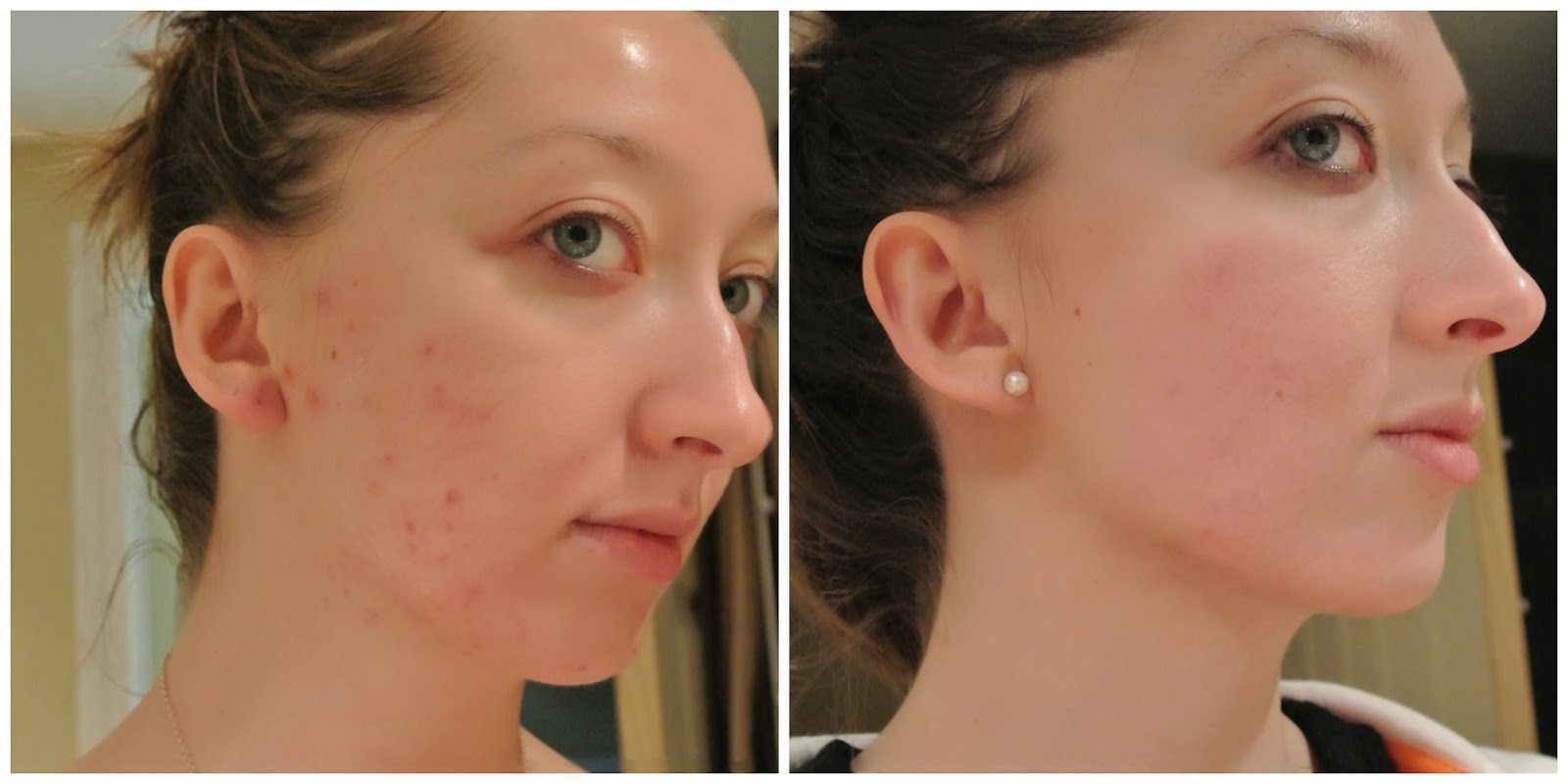 Accutane Before And After Pics