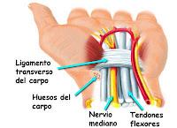 Síndrome De Túnel Carpiano Bilateral