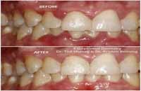 gingivitis mal aliento