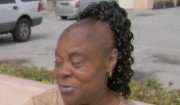Worst Girl Hairline Images & Pictures - Becuo