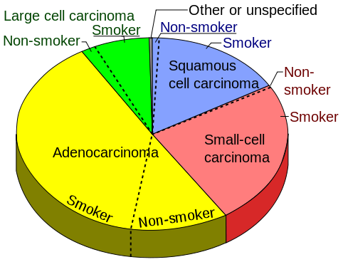 Pie chart of the incidence of lung cancer types, sorted by ...