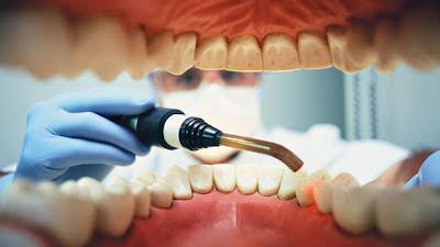 Dentista le sacó todos los dientes a su ex novio por venganza