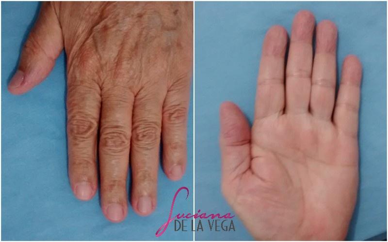 mãos hidratadas, tratamento para mãos, creme para as mãos, manicure