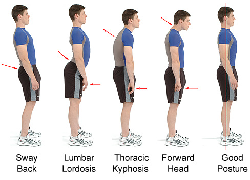 Exercises to Correct Spinal Alignment http://raleighchiropractor.blogspot.com/2011/11/good-posturewhat-is-that.html