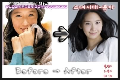 Here s Yoona before and after the supposed plastic surgery  People    Yoona Plastic Surgery Nose