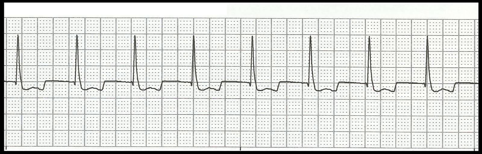 Float Nurse: Basic EKG Rhythm Test 06
