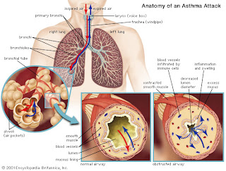 Nursing Assessment for Asthma