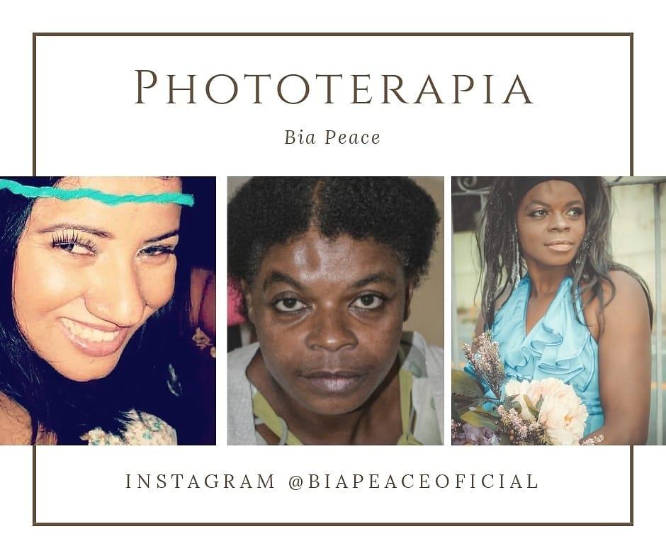Phototerapia