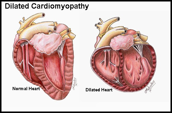 cardiomyopathy: causes, symptoms, diagnosis, treatment | tips, Skeleton