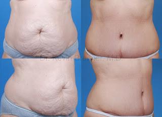 Abdominoplastia imagens e fotos