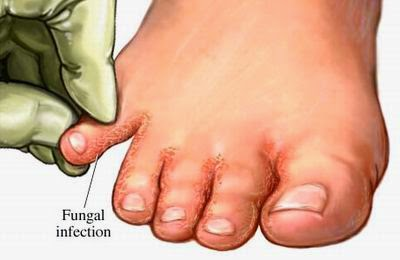 FUNGAL INFECTIONS CARE