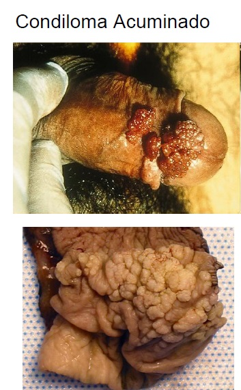 enfermedad de bowen pene