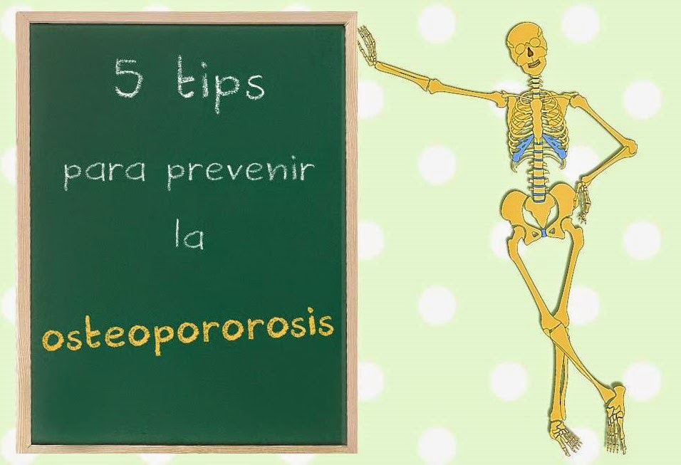 5 tips para prevenir la osteoporosis