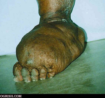 A Little Daily Discovery: What is elephantiasis?