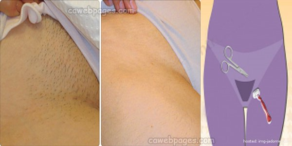 How best to shave pubic area