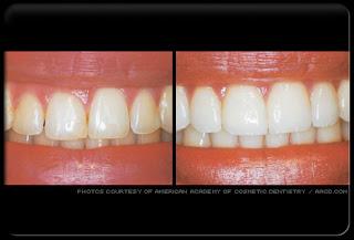 طب الاسنان التجميلي 10.jpg