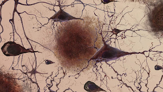 Researchers Find Link Between Stress And Alzheimer's