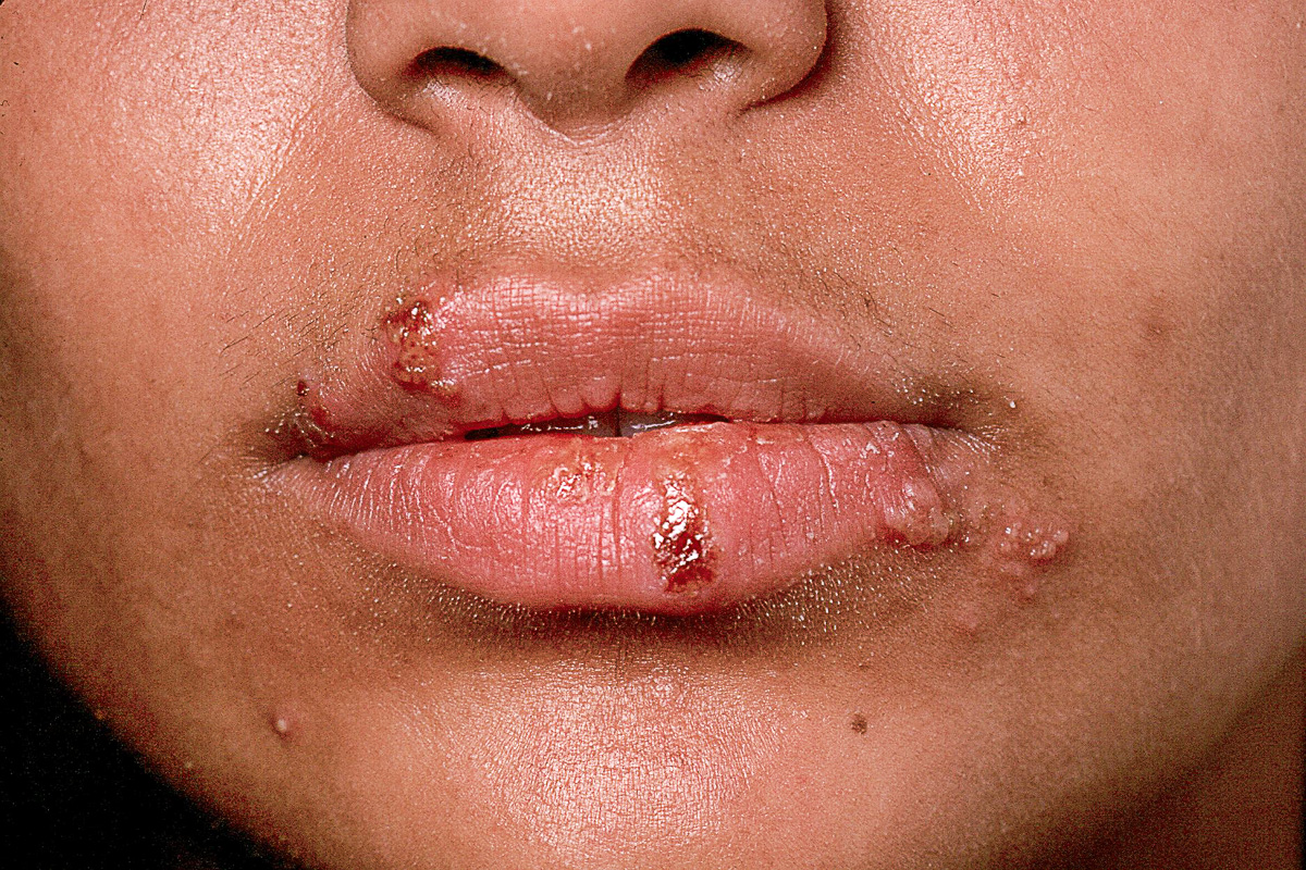 infeccion de Herpes oral con ampollas