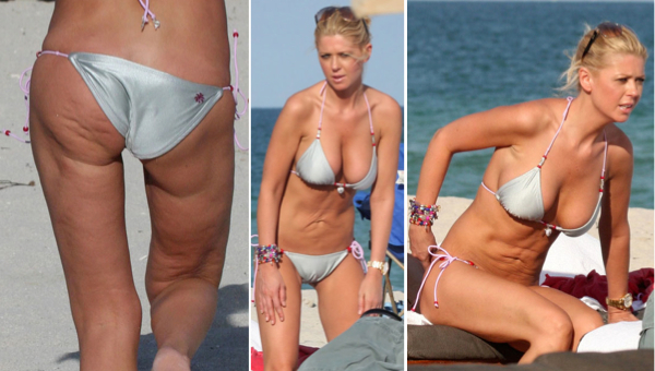 Tara Reid Botched Plastic Surgery