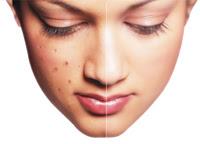 face pimples