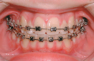pengalaman pakai braces