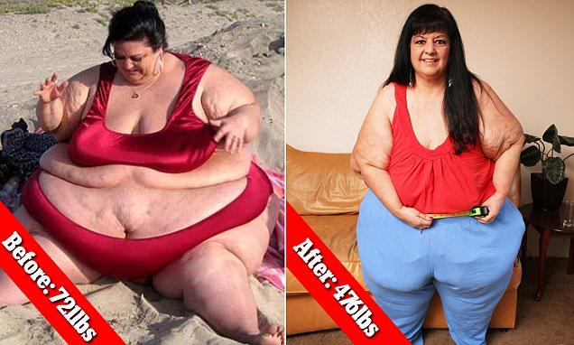 Karena Putus, Wanita Ini Berat Badannya Turun Hingga 100 Kg