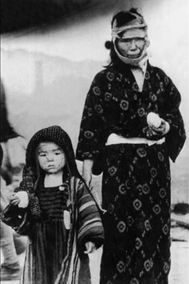 20 Shocking Pictures Of Hiroshima, The First City In History To Be Destroyed By An Atomic Bomb - 70,000 people died instantly in Nagasaki. Photo of a survivor with her child