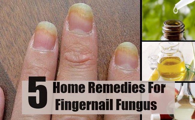 The Top 5 natural ways to get rid of toe nail fungus | Zetaclear UK ...