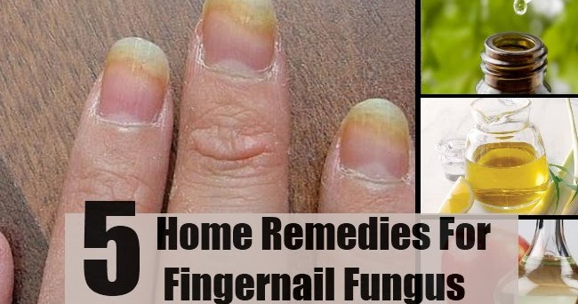 how to get rid of toe fungus at home