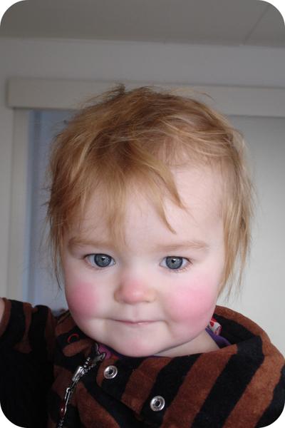 røde kinder baby