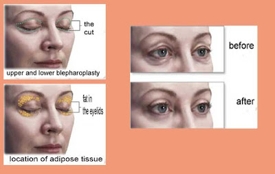 surgery to remove bags under the eyes
