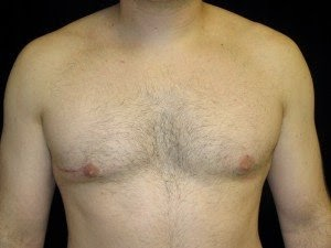 crater deformity and gynecomastia