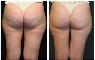 eliminate Cellulite On Bum