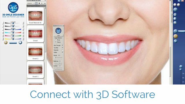 Dental smile design