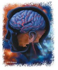 図:脳卒中後の痛み